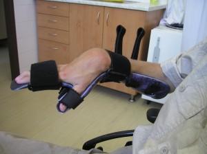 Pokus o zlepšení před operací dlahováním